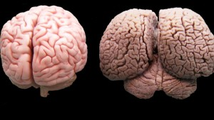 Мозък на Човек и Делфин