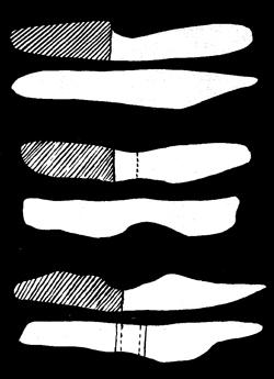 Каменни щокове